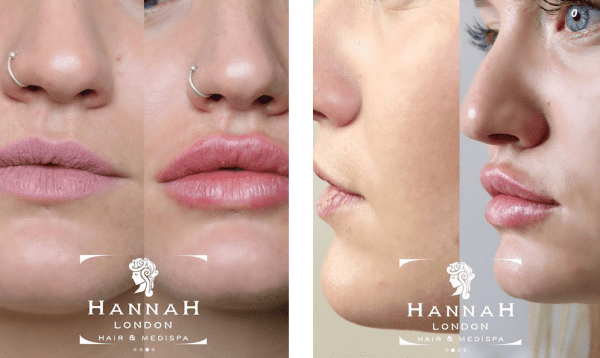 kashira whiteley lip fillers in london at hannah london before and after showing closeup of lips before and after the juvederm lip filler treatment