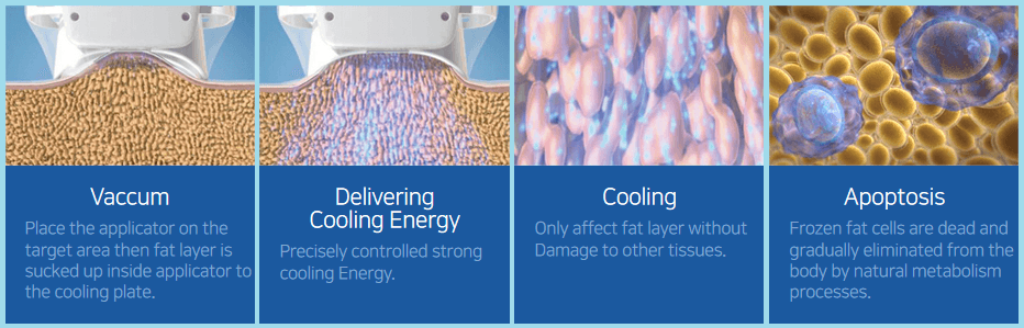 fat freezing in london graphic showing how the treatment works on the skin and freezes fat