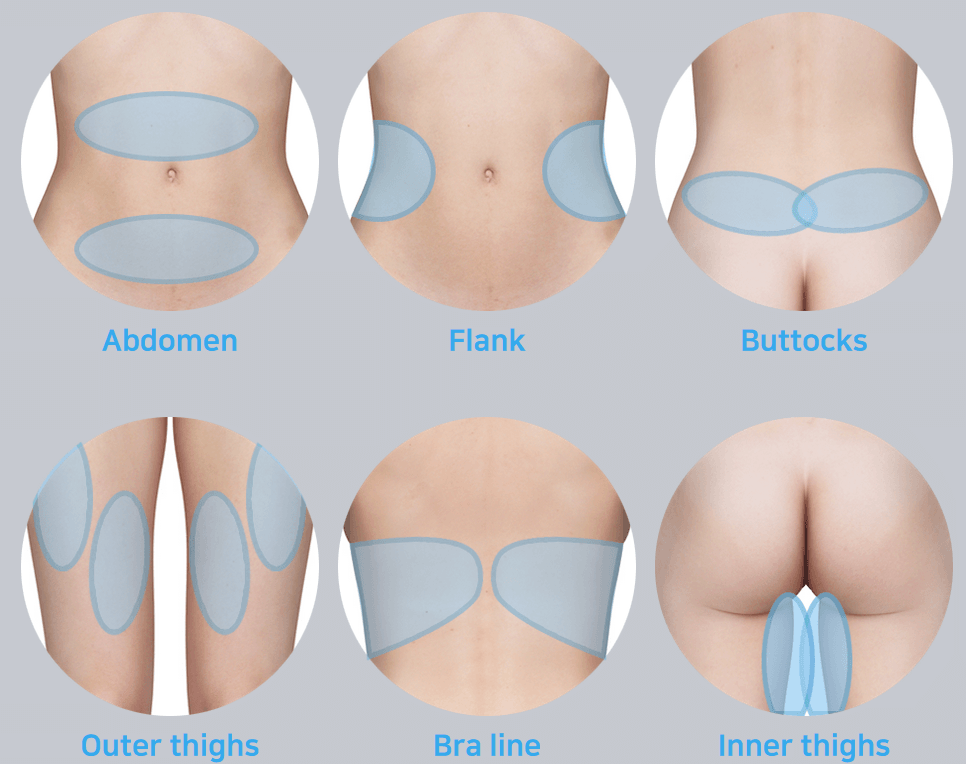fat freezing in london graphic displaying the areas of the body that can be treated with the micool fat freezing technology