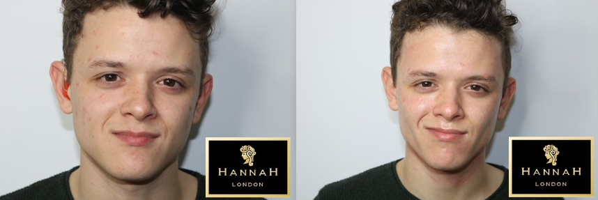 skin peel offer at hannah london before skin peel on left and after skin peel on right