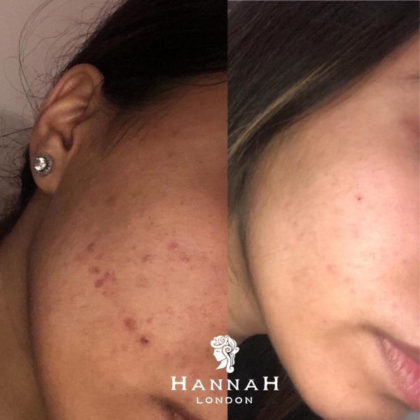 skin peels offer at hannah london showing before and after of a female client with acne clearing up
