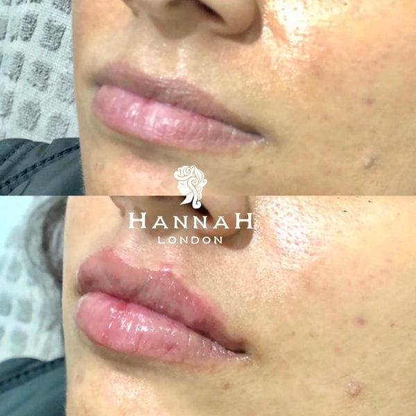 lip filler offer hannah london close up before and after picture of lips with lip filler treatment