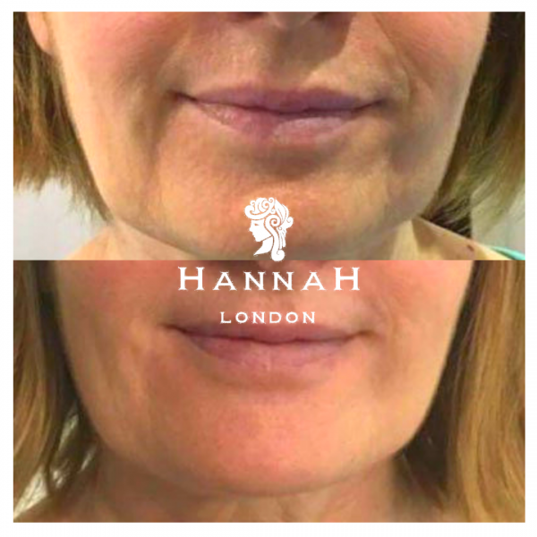 hifu double chin reduction treatment at hannah london before and after of female client showing cheeks and jaw and chin area before and after hifu treatment