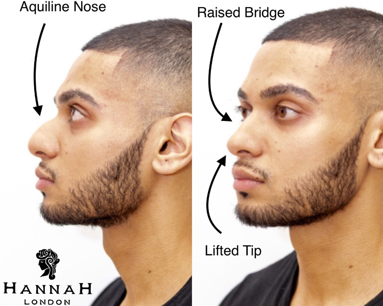 non-surgical nose job in london before and after image of a man with an aquiline nose on the left and after receiving dermal fillers on the right