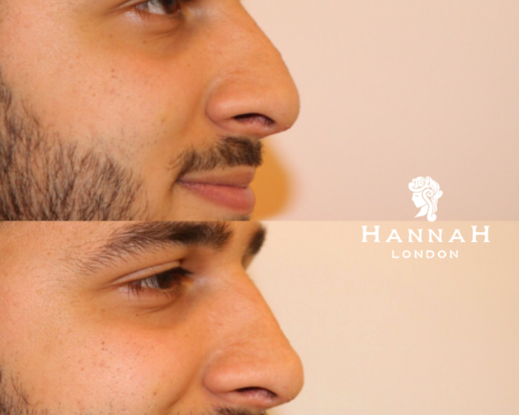 non-surgical nose job in london before and after of a man with a hooked nose above and after nose fillers on the bottom