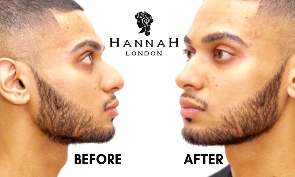 non-surgical rhinoplasty at hannah london profile balancing with dermal fillers