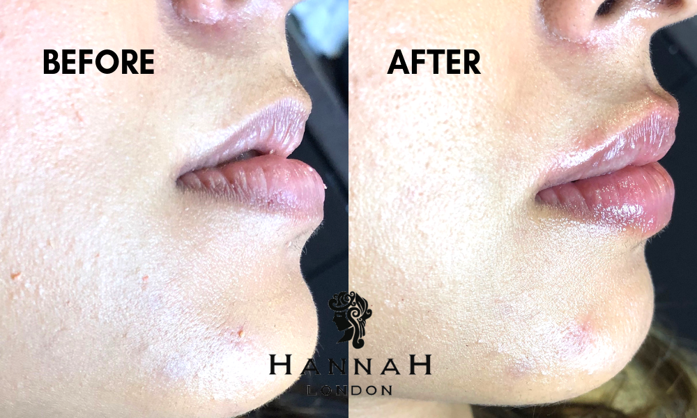 lip fillers at hannah london profile balancing with dermal fillers