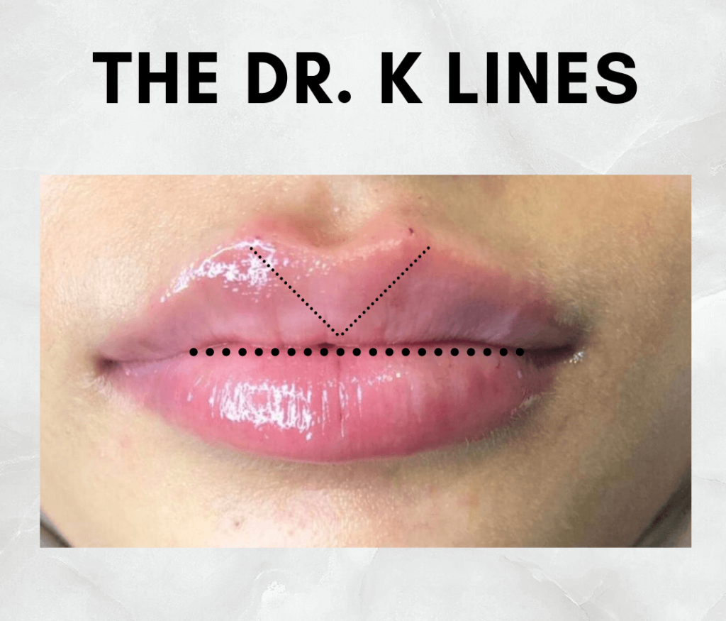 dr. k lines lip filler offer