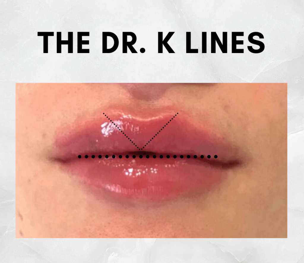 dr. k lines lip filler offer