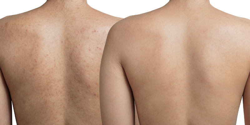 Back Facial London Before and After