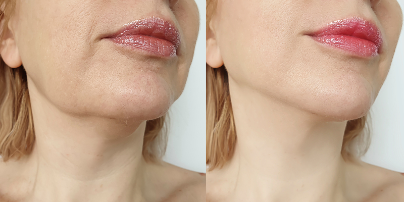 Profhilo Treatment Before and After Hannah London