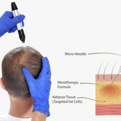 scalp mesotherapy micro needle procedure overview 2
