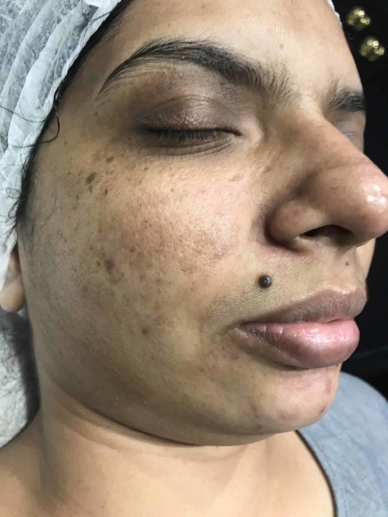 Skin-Peels-London-Cosmelan-Depigmentation-Peel-before