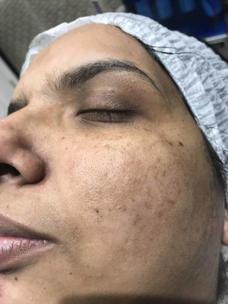 Skin-Peels-London-Cosmelan-Depigmentation-Peel-before right