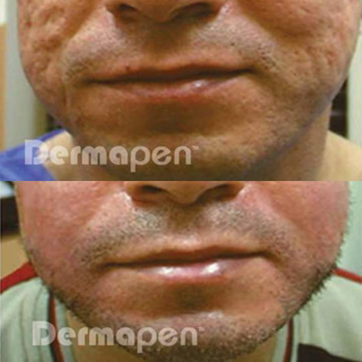 before after acne scarring dermapen
