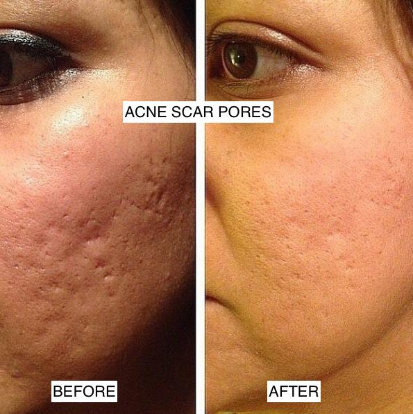 dermapen acne scar pores