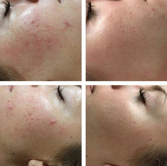 dermapen microneedling acne before and after