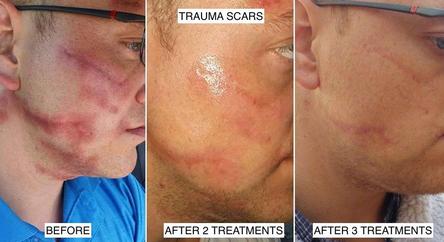 dermapen microneedling motorbike accident scar treatment