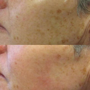 pigmentation before and after dermapen microneedling