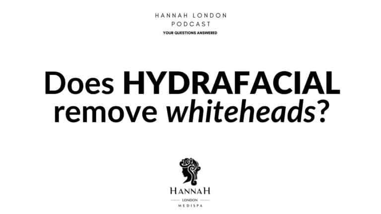 Does HydraFacial remove whiteheads?