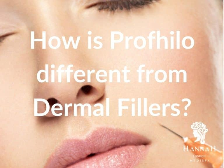 How is Profhilo different from Dermal Fillers?